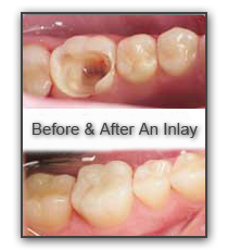 Dentist Inlays and Onlays in Port St. Lucie Florida - SouthPort Dental