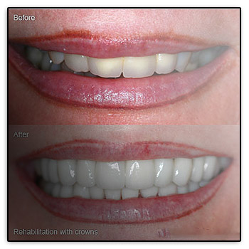 Dental Crown Amp Tooth Crown In Port St Lucie Florida