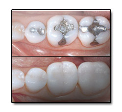 Dental fillings consultation tooth composites in port st lucie including southport dental care solutioingenieria